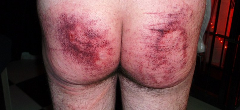 Blister his ass spank spank spank much